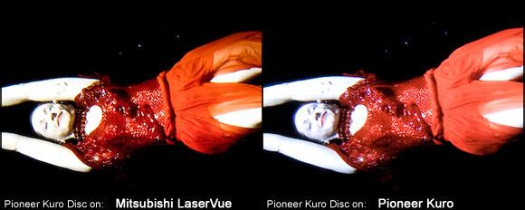 The Tech Lounge LaserVue v. Kuro test